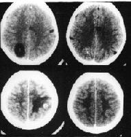 Neuroimaging in Neurocysticercosis