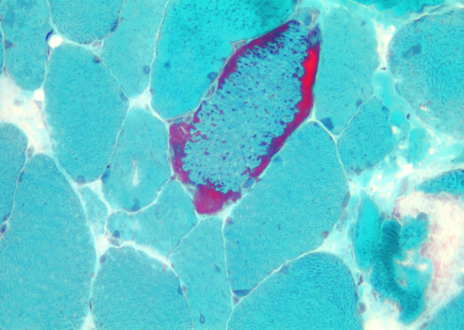 Mitochondrial myopathy, trichrome frozen section....