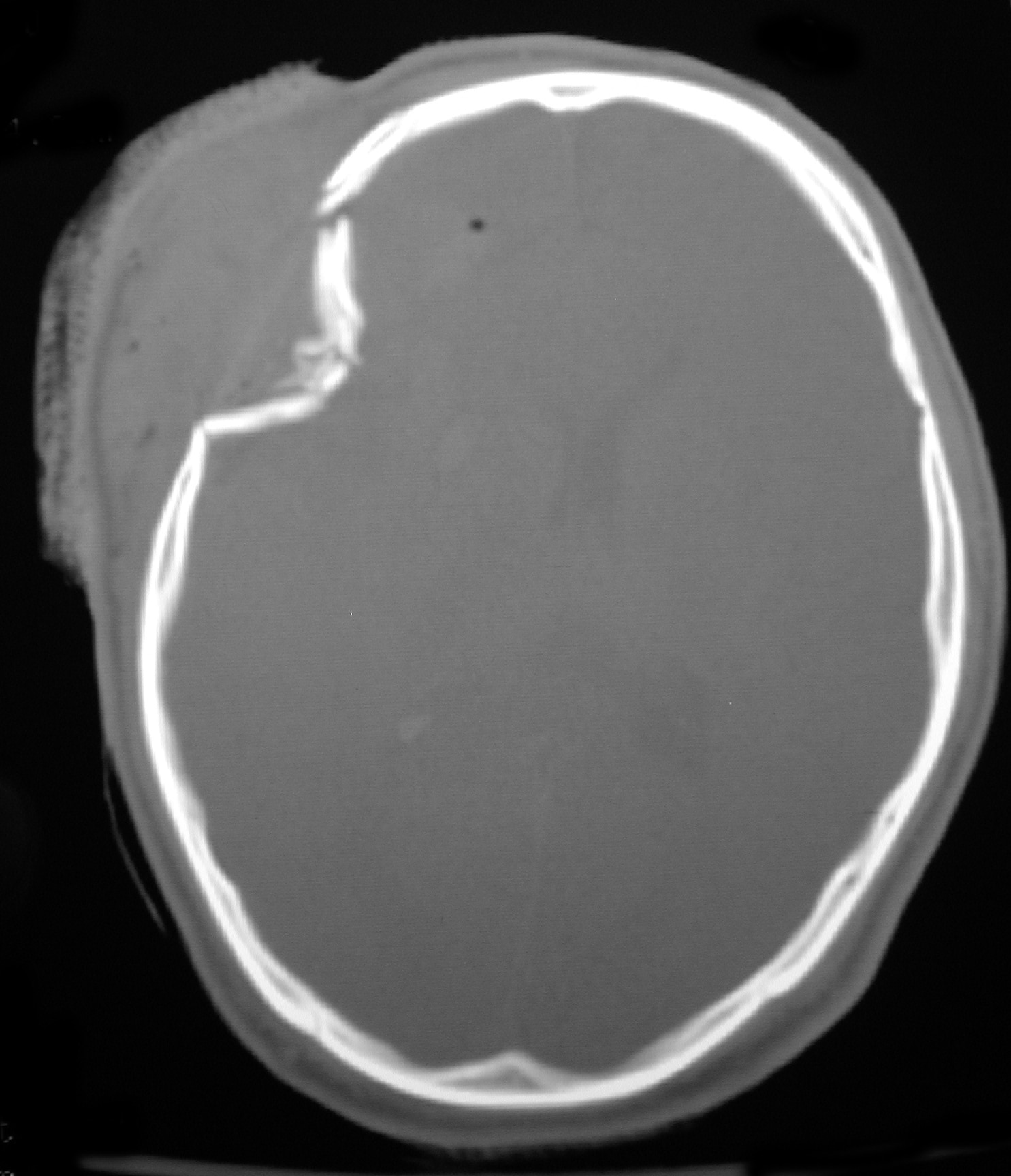Depressed skull fracture (courtesy of Adam Flanders, MD, Thomas