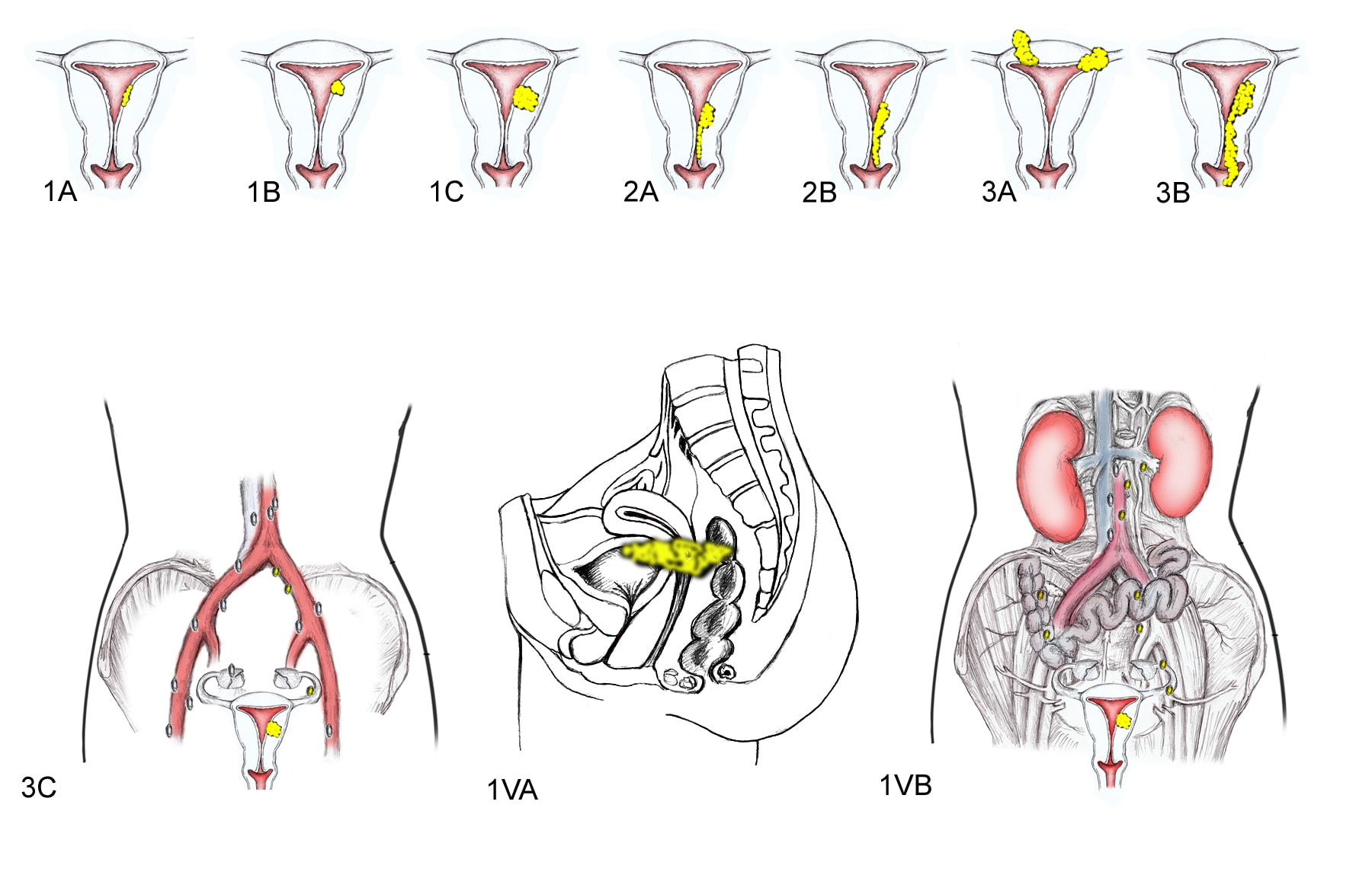 NEW FIGO ENDOMETRIAL CANCER STAGING