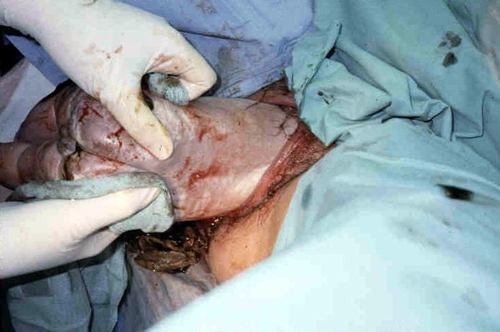 Assisted vaginal breech delivery. After the scapu...