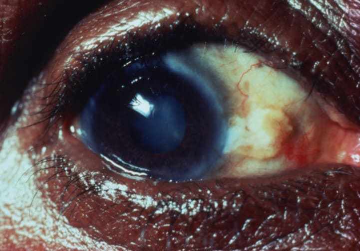 Trachoma (diagnosis -treatment) photos videos 1189694-1202088-183.jpg