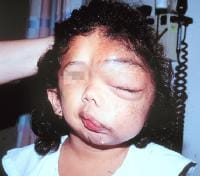 Photos of Facial Deformities http://emedicine.medscape.com/article/1219222-overview