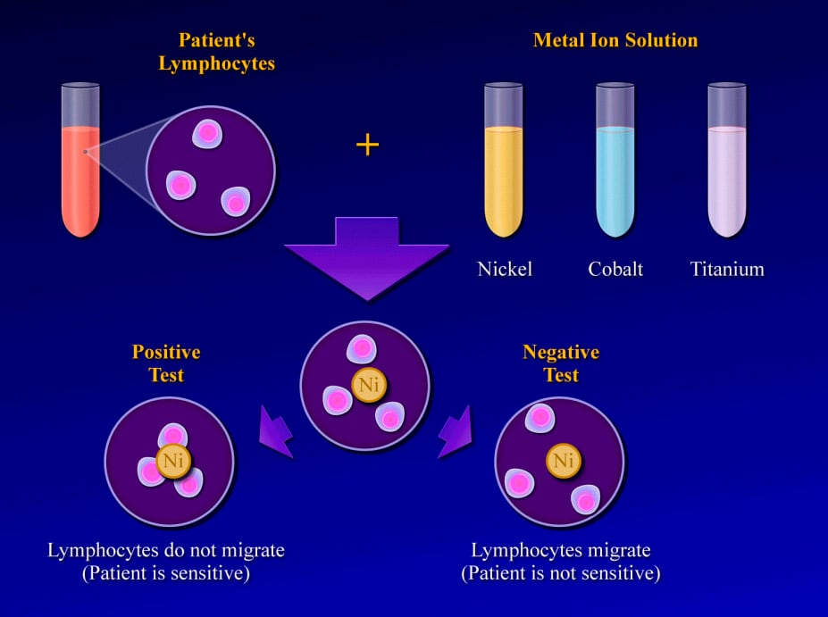 (Click Image to enlarge.) Lymphokine migration te...