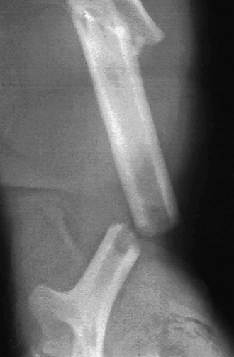 Ipsilateral segmental humeral fracture.