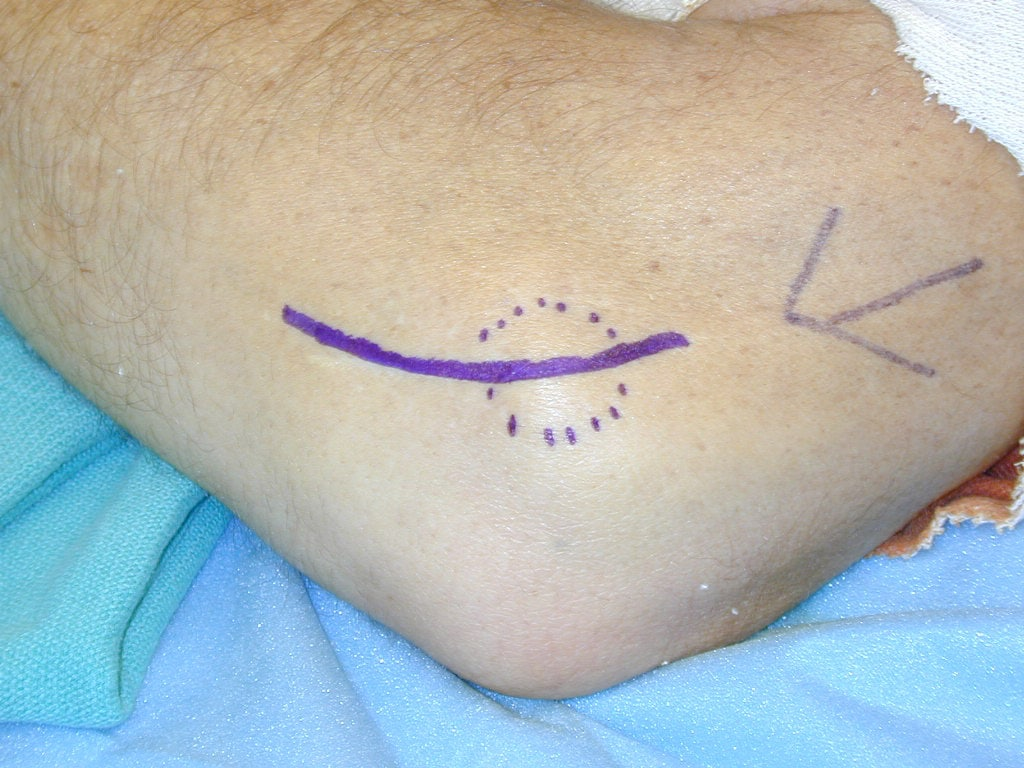 Lateral epicondylitis. Incision for open debride...