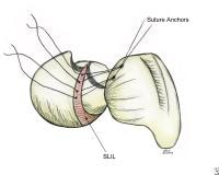 Drawing demonstrating suture anchor placement for