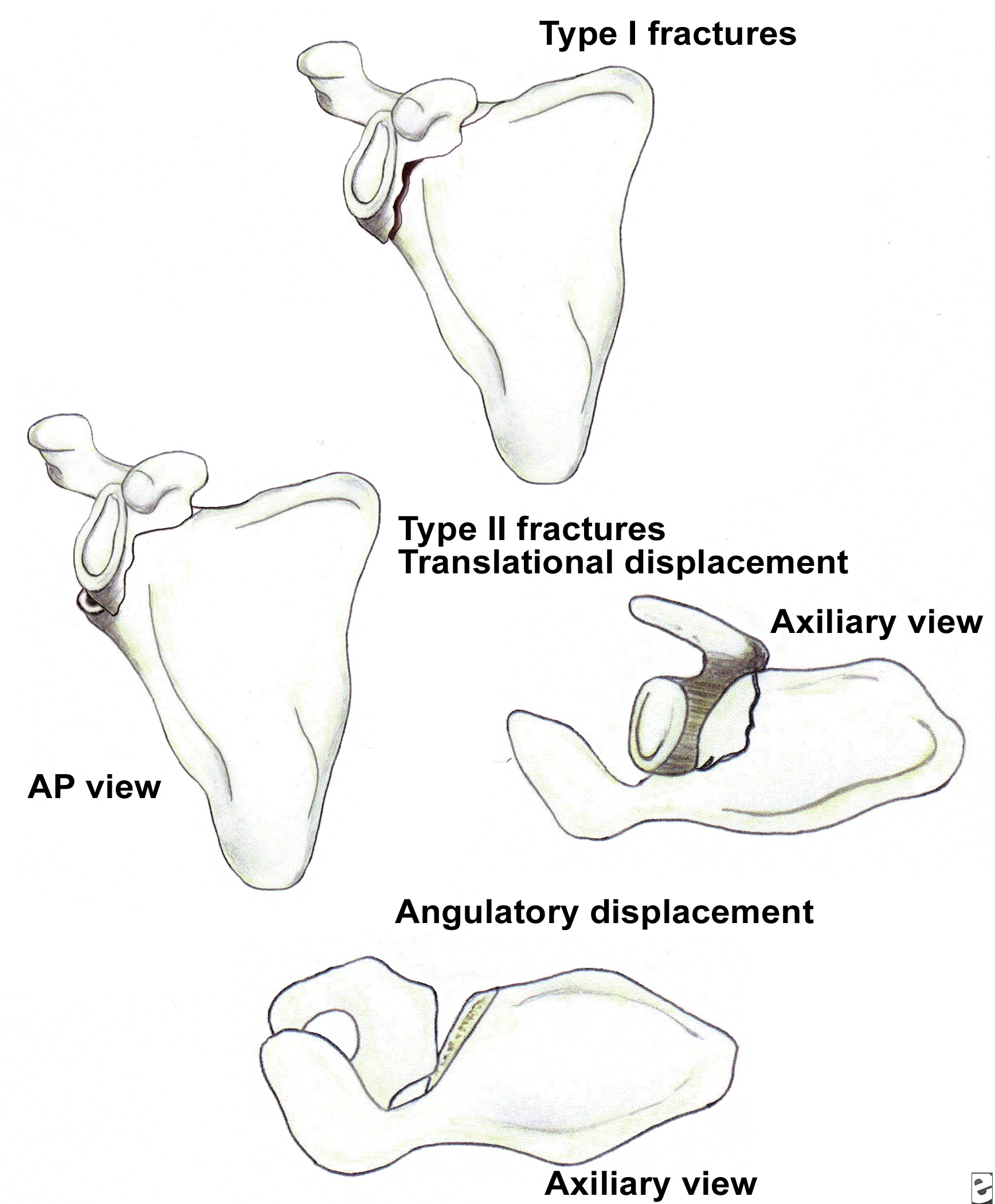 Classification of glenoid neck fractures. Type I ...