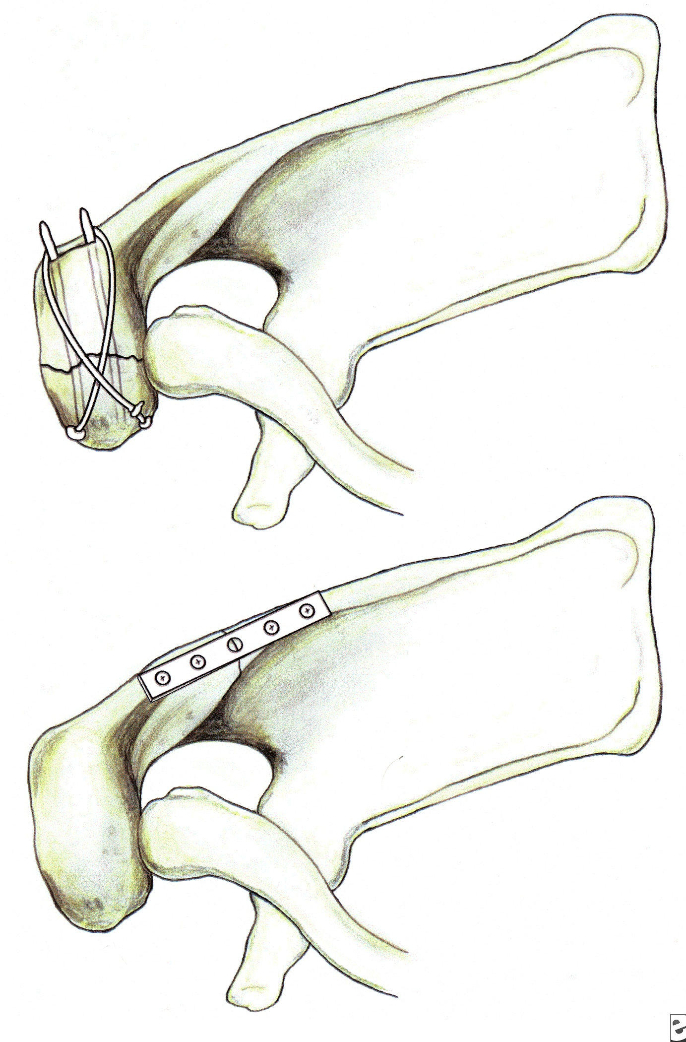 Fixation of acromion fractures. (A) tension band ...