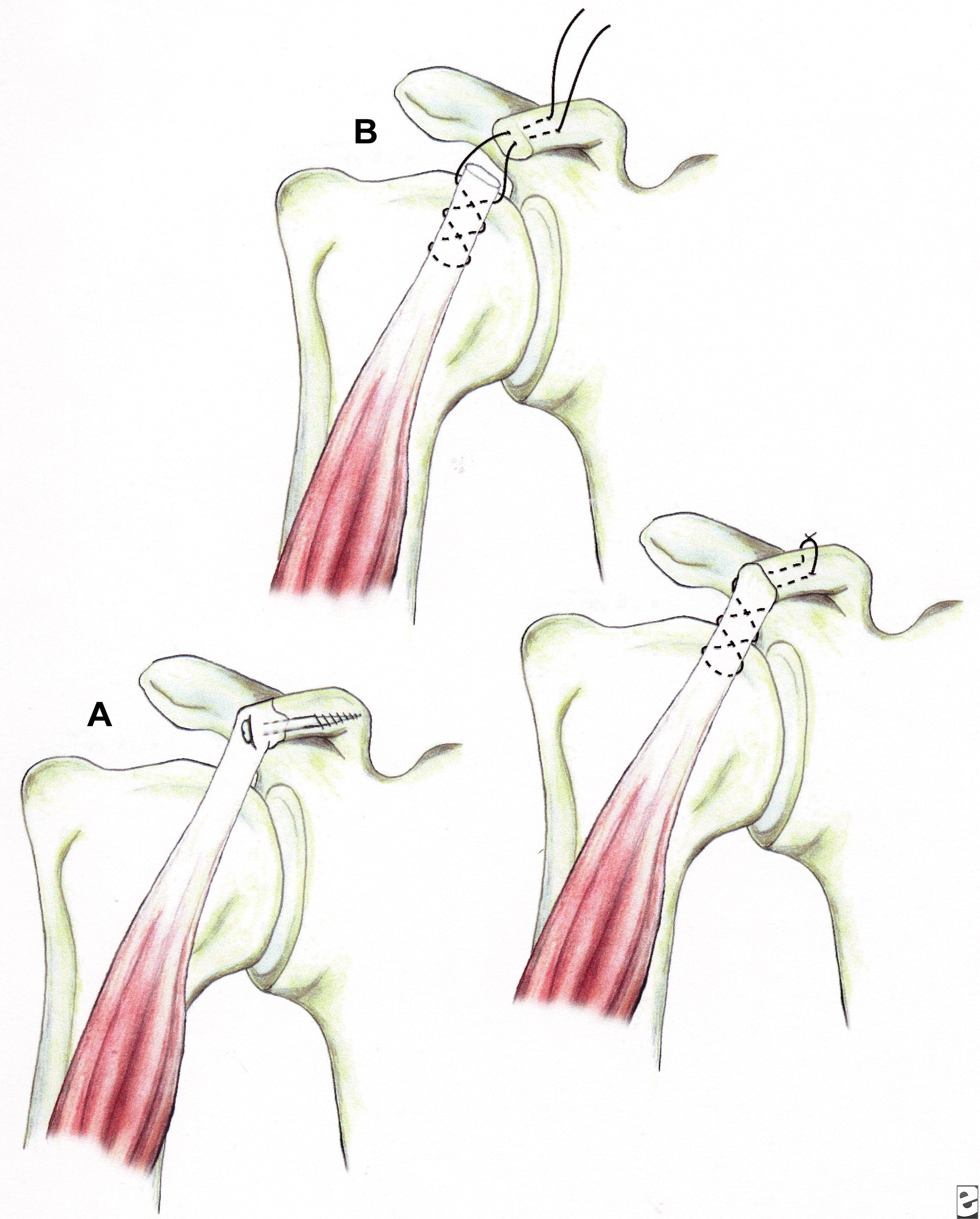 Illustrations showing techniques for managing cor...