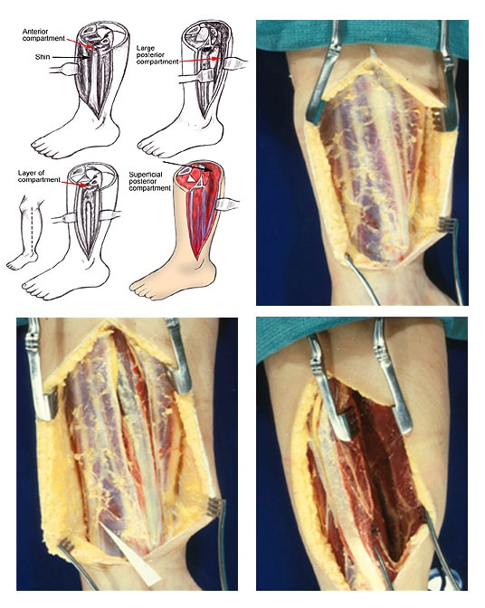 (Click Image to enlarge.) Single-incision fasciot...