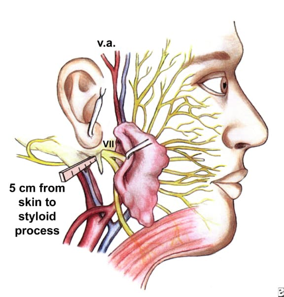 The surgical anatomy and landmarks of the facial nerve.