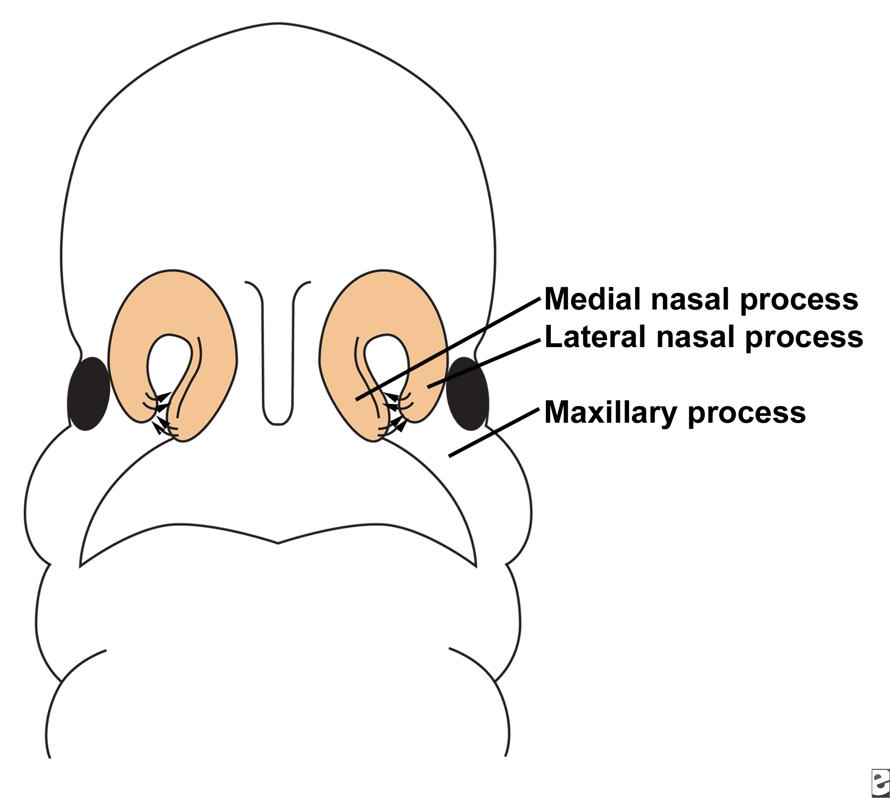 Illustration depicts fusion of  the lateral nasal,...