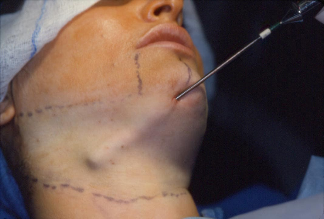 liposuction neck copy