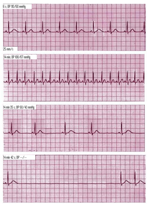 heart attack ecg. heart attack ecg. ECG rhythm strip of lead II