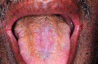 The dorsal tongue demonstrates hyperplastic candi...