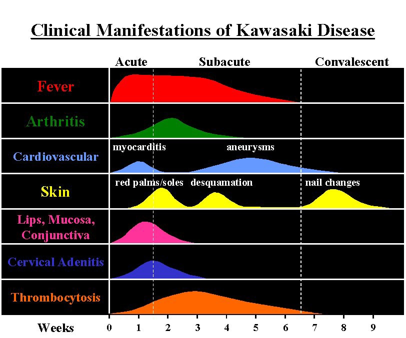 Atypical Kawasaki Disease Medscape