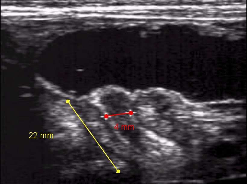 Longitudinal ultrasonogram of pyloric stenosis.