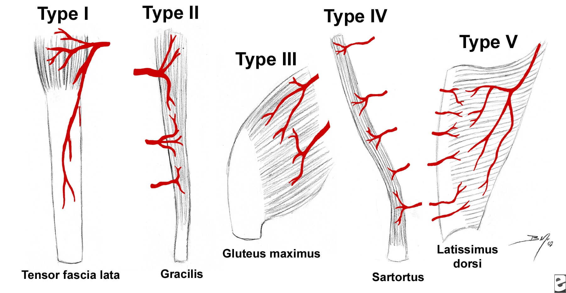Patterns of muscle flap vascular  anatomy. Type I ...