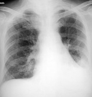 Aspiration pneumonia. An 84-year-old man in gener...