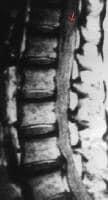 T1-weighted sagittal nonenhanced MRI of the lumbar