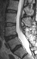 Sagittal T2-weighted MRI of the lumbar spine after