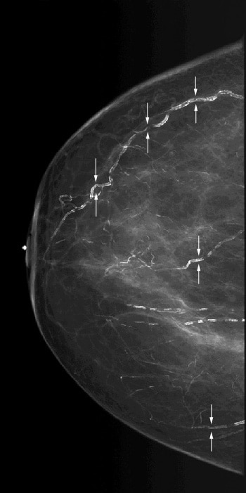Scattered vascular calcifications with train trac...
