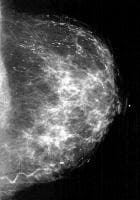 Large rodlike or secretory calcifications are ori...
