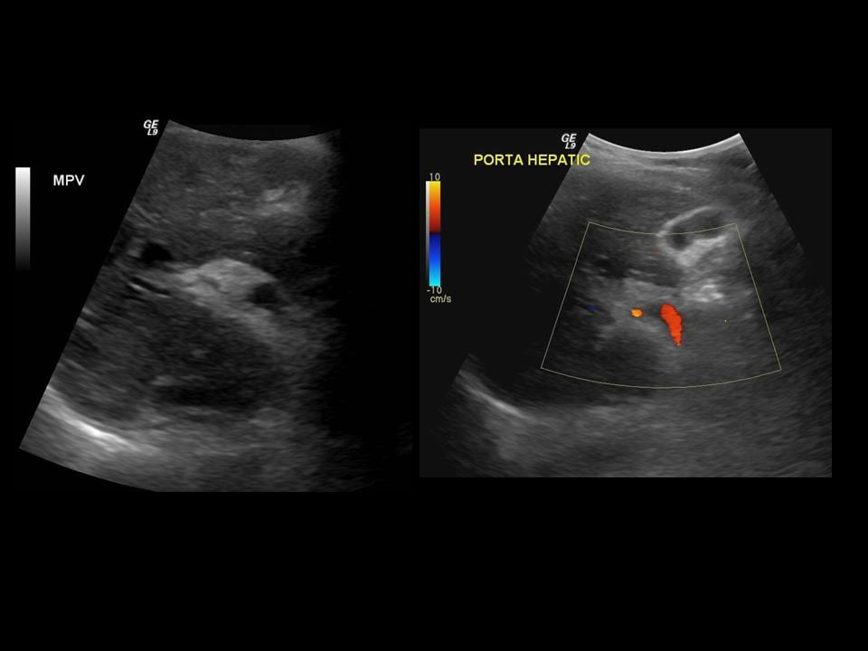 portal hypertension ultrasound Transjugular intrahepatic portosystemic shunt (tips) connecting the portal and hepatic vein to treat portal hypertension the liver has many different functions, including acting as a filter that cleans the blood from the digestive organs.