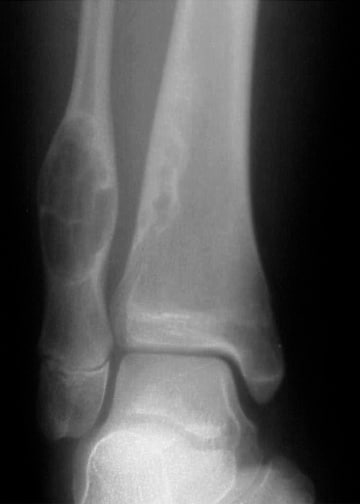 Anteroposterior radiograph of the distal tibia an...