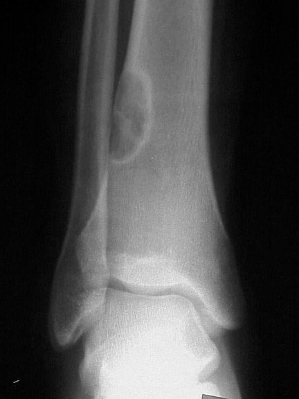Anteroposterior radiograph of the distal tibia sh...