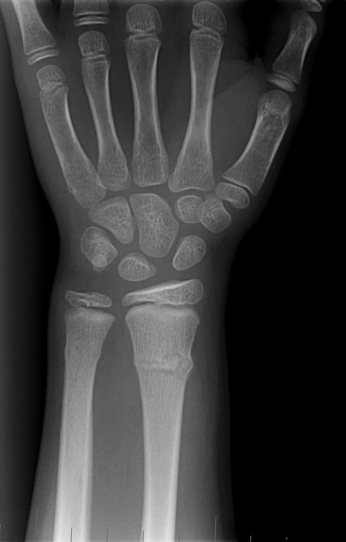 Buckle Fracture Wrist X-Ray-img.medscape.com