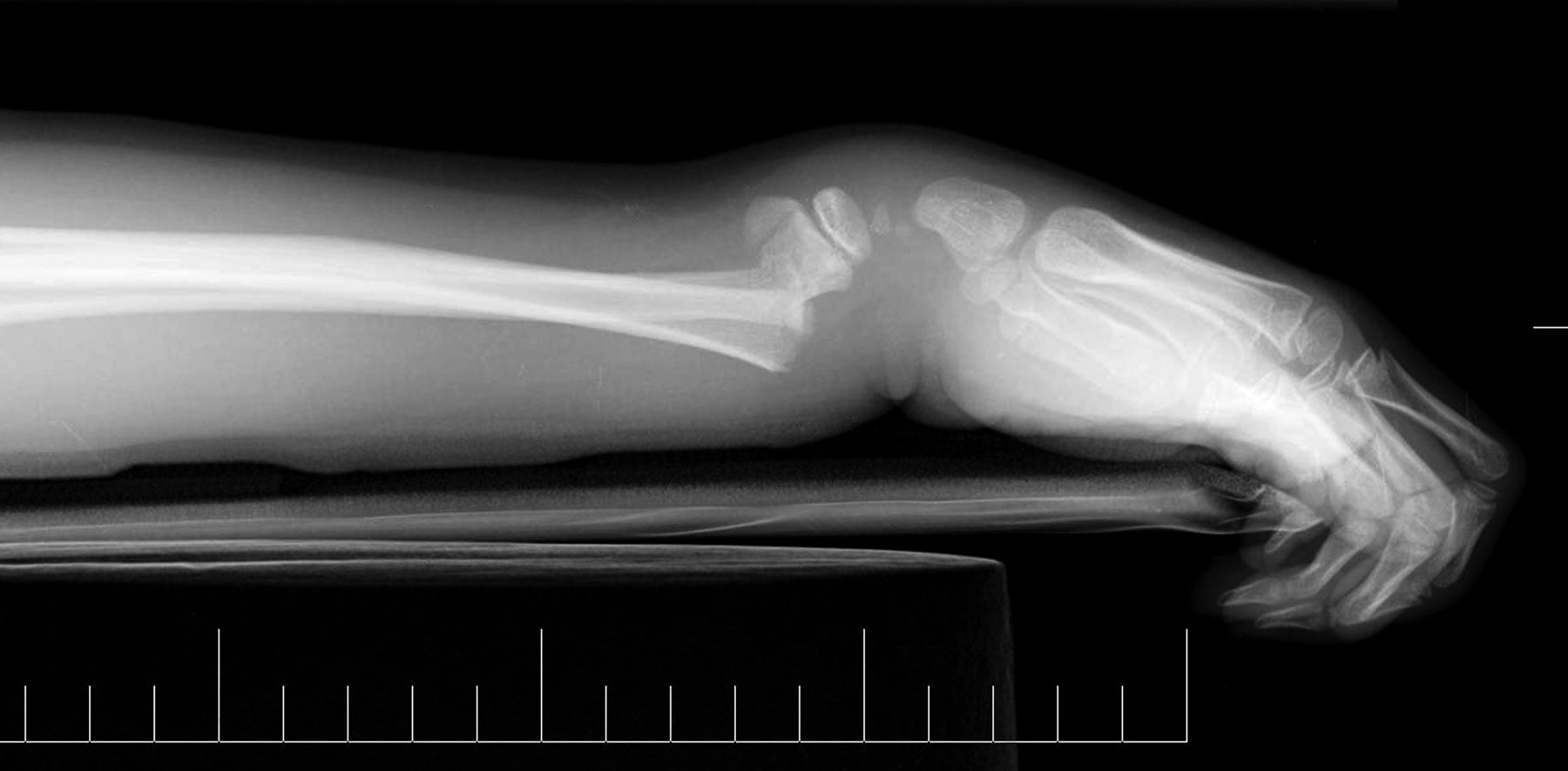 Lateral view of the wrist demonstrates a Colles f...