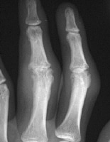 Soft-tissue swelling and early erosions in the pr...