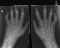 Widespread osteopenia, carpal crowding (due to ca...