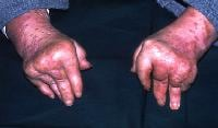 Arthritis mutilans, a typically psoriatic pattern...
