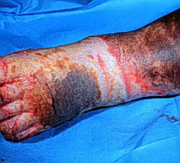 Initial evaluation and management of the burn patient. Third-degree burns