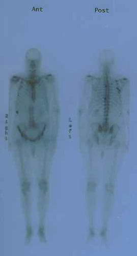 Anterior and posterior bone scans of a patient wi...