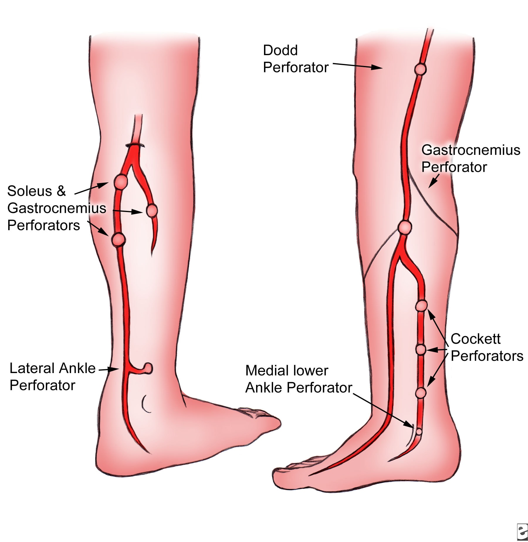 leg vein. Factors that can increase risk for varicose veins can