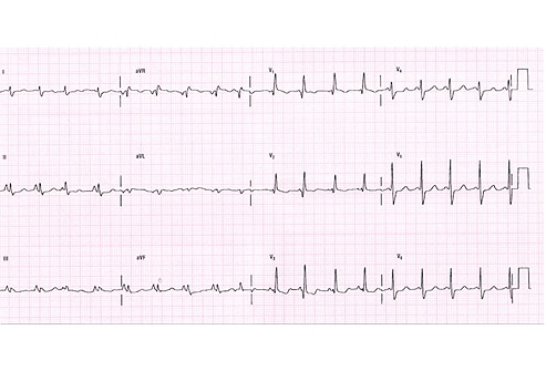 Abnormal Ekg | www.pixshark.com - Images Galleries With A ...