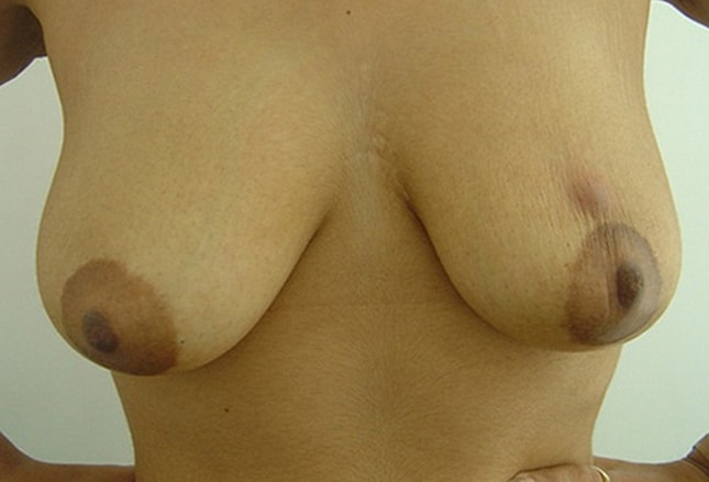 2 BREAST LUMPS - Breast Cancer - MedHelp