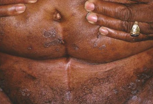 cutaneous fungal infections: slideshow, Skeleton