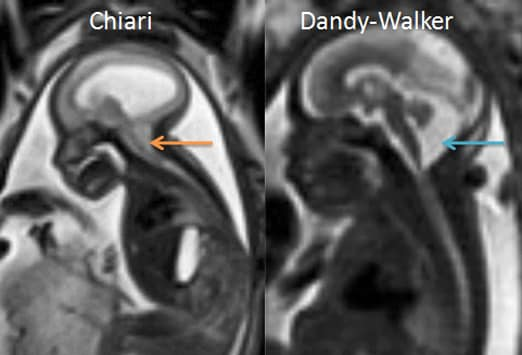 "medical thesis on chiari Researchers to present new findings on chiari, a brain malformation, at akron conference patient experiences,"" conducted by three northeast ohio medical."