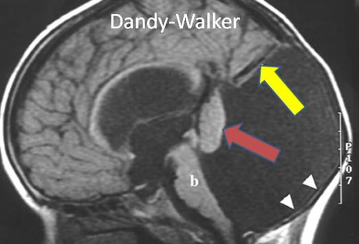 developmental anomalies to watch out for: chiari and dandy-walker, Skeleton