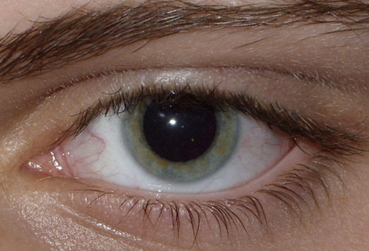 a confused young woman with slurred speech: case presentation, Skeleton