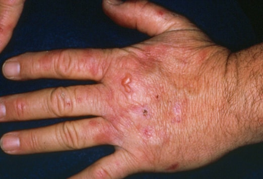 Herpes on Hands - whatisherpes.net