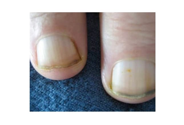 Green Or Black Nails May Be From Trauma Chronic Pseudomonas Infection