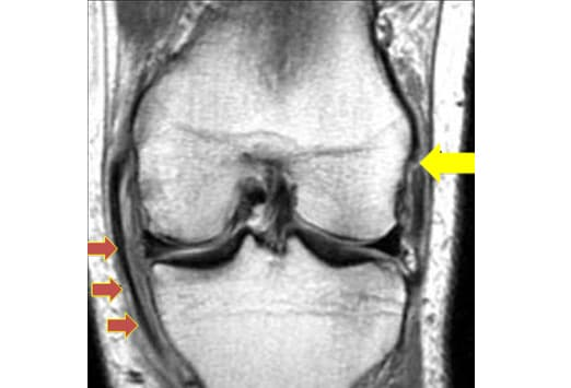 mri knee acl tear