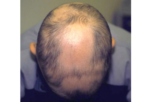 Not to miss diseases presenting as hair loss slideshow vitilitgo thyroid disease collagen vascular disease diabetes mellitus down syndrome and psychiatric disorders characterized by stress urmus Choice Image