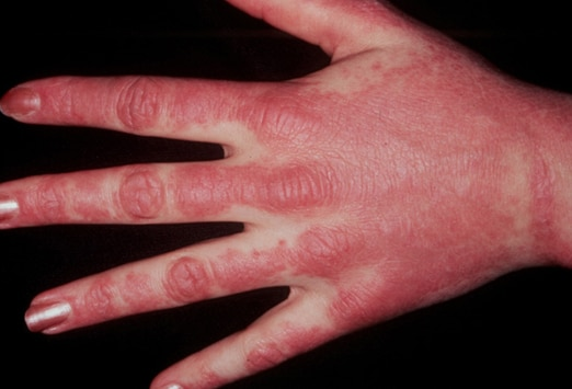 rash on top of hands only #10